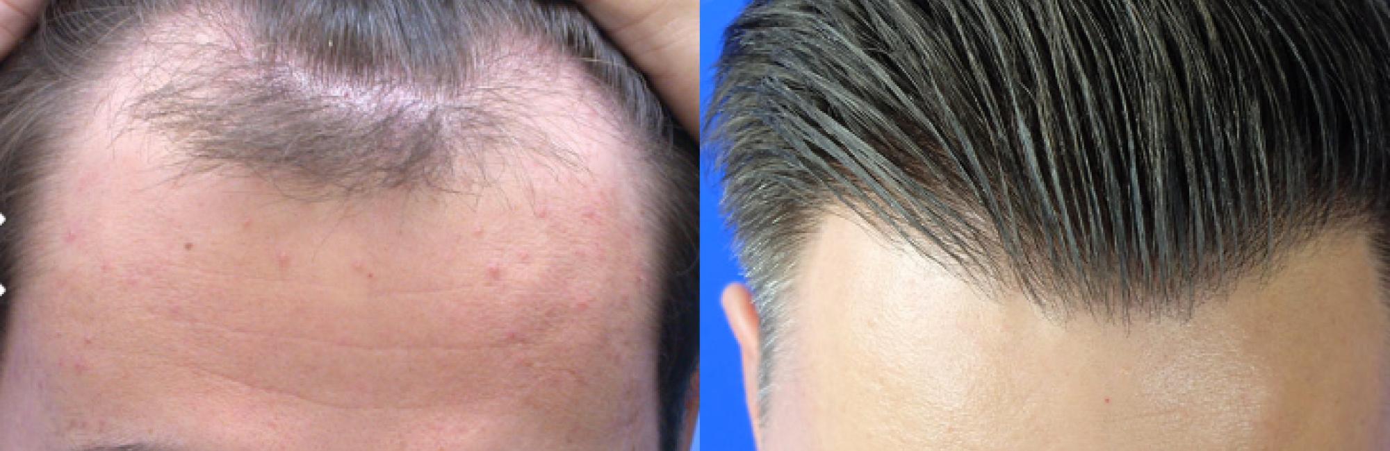Saç ekimi işleminden istenilen sonucun alınması, saç ekimi yapan ekibin tecrübeli oluşudur.,