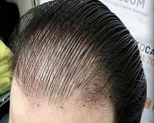 Saç ekimi, şube-basliç bakım