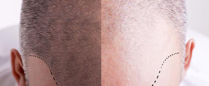 Esteviva Güzellik Merkezi -  Esteviva Hair Clinic  - Van'da Saç Ekimi